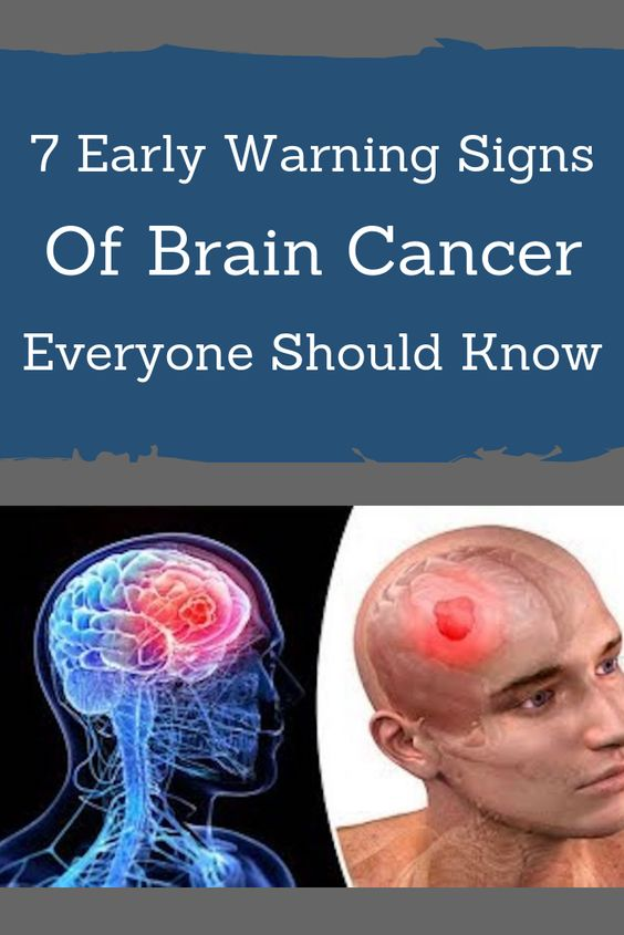 7 Early Warning Signs Of Brain Cancer Everyone Should Know ...