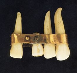 "Egyptian and Babylonian civilizations (IV and V sec. BC), the toothache was considered a sign of divine wrath and relief could be obtained through prayers and ""spells"". The greek historian Herodotus wrote that Egypt was full of specialists in the various branches of #medicine including dentistry, however, Egyptologists have not been able to find evidence of actual dental work on skulls unearthed."
