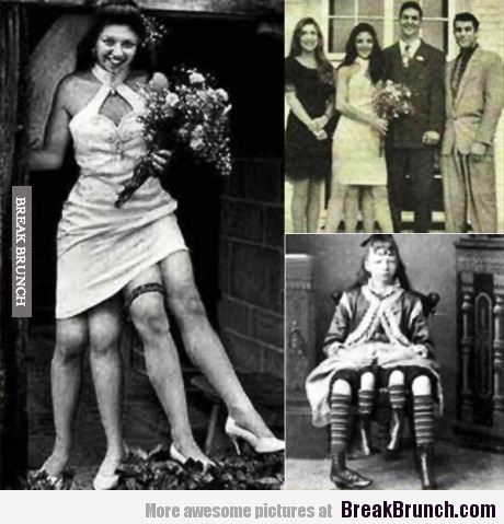 Josephine Myrtle Corbin is the woman with 4 legs