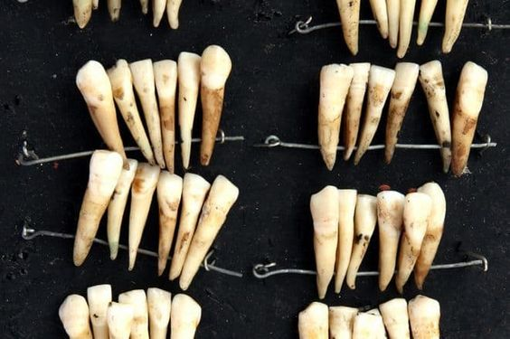 From Ancient Egypt to the Nazis: 16 Horrors of Dentistry Through the Centuries