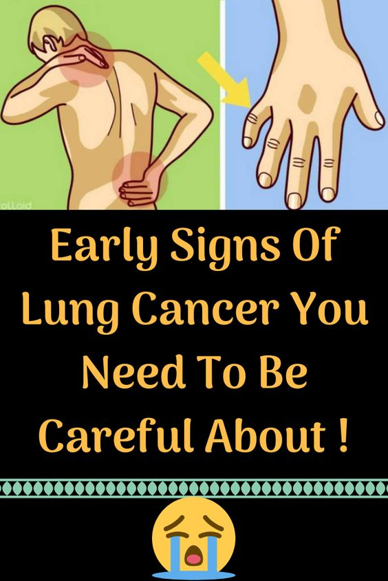 Early Signs Of Lung Cancer You Need To Be Careful About ....