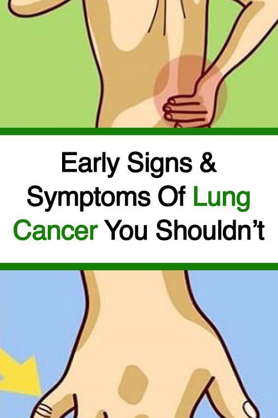 Early Signs & Symptoms Of Lung Cancer You Shouldnâ