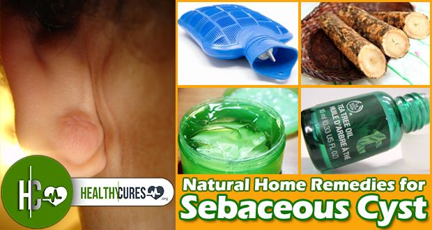 18 Remedies to Remove Sebaceous Cyst Naturally at Home (Fa